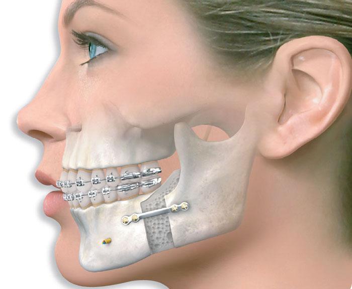 Является лм признаком дебилизации отвисание челюсти